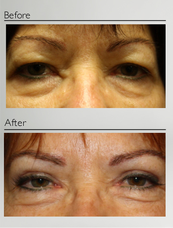 eyelid_surgery_upper_eyelid_blepharoplasty_before_after_Dr_Patrick_Boulos_clinique_o_montreal_01