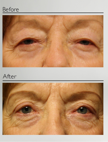 eyelid_surgery_upper_eyelid_blepharoplasty_before_after_Dr_Patrick_Boulos_clinique_o_montreal_02
