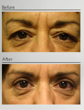 eyelid_surgery_upper_eyelid_blepharoplasty_before_after_Dr_Patrick_Boulos_clinique_o_montreal_03
