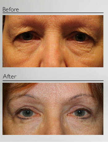 eyelid_surgery_upper_eyelid_blepharoplasty_before_after_Dr_Patrick_Boulos_clinique_o_montreal_04