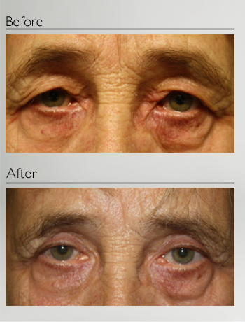 eyelid_surgery_upper_eyelid_blepharoplasty_before_after_Dr_Patrick_Boulos_clinique_o_montreal_05