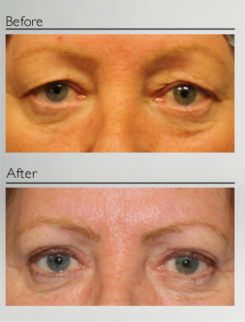 eyelid_surgery_upper_eyelid_blepharoplasty_before_after_Dr_Patrick_Boulos_clinique_o_montreal_06