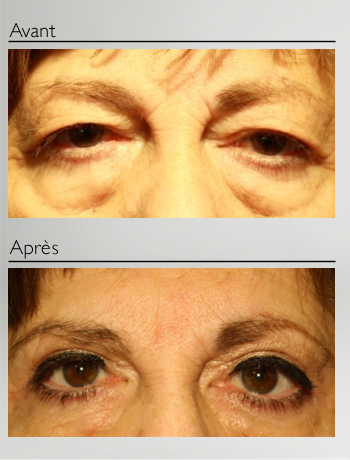 eyelid_surgery_upper_eyelid_blepharoplasty_before_after_Dr_Patrick_Boulos_clinique_o_montreal_07