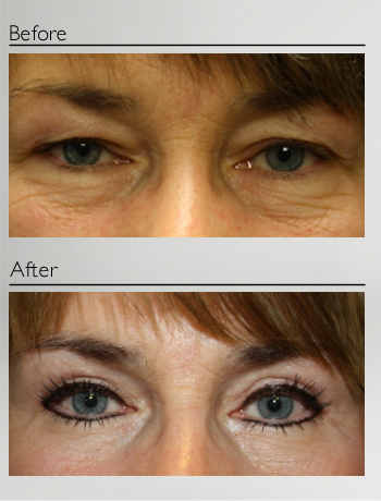 eyelid_surgery_upper_eyelid_blepharoplasty_before_after_Dr_Patrick_Boulos_clinique_o_montreal_08