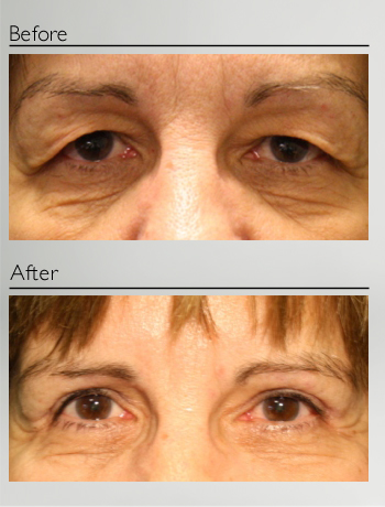 eyelid_surgery_upper_eyelid_blepharoplasty_before_after_Dr_Patrick_Boulos_clinique_o_montreal_10