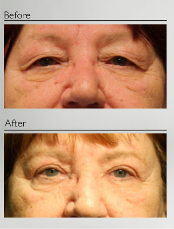 eyelid_surgery_upper_eyelid_blepharoplasty_before_after_Dr_Patrick_Boulos_clinique_o_montreal_11