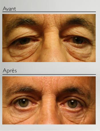 Blépharoplastie 4 paupières-1