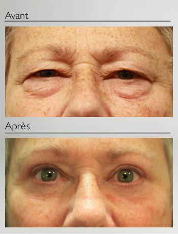 Blépharoplastie 4 paupières-9