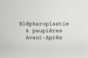 Blépharoplastie 4 paupières