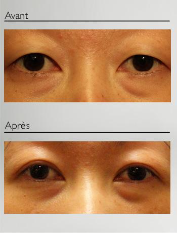 Blépharoplastie asiatique-2