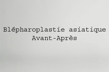 Blépharoplastie asiatique