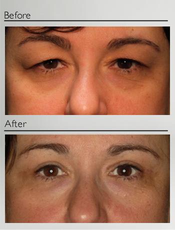 Upper eyelid Blepharoplasty and Xanthelasma