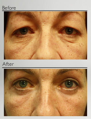 Upper and lower blepharoplasty + TSA