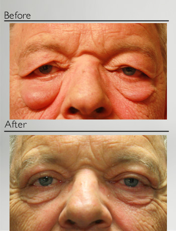 Upper and lower blepharoplasty + festoons