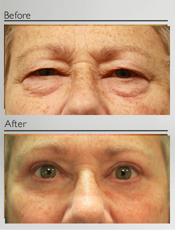 Blepharoplasty upper and lower-10