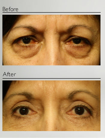 Blepharoplasty upper and lower-1