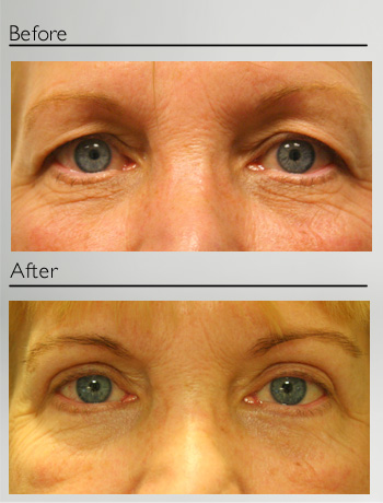 Blepharoplasty upper and lower-12