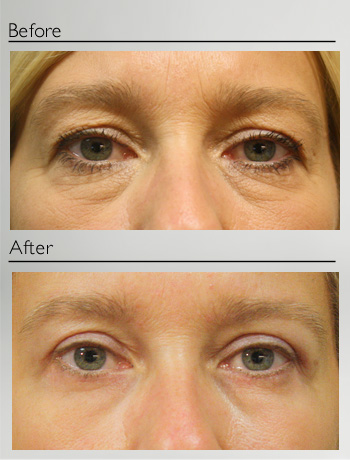Blepharoplasty upper and lower-13