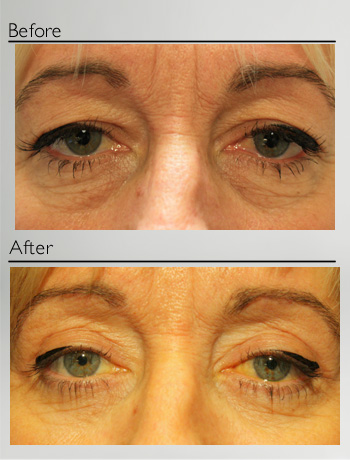 Blepharoplasty upper and lower-14