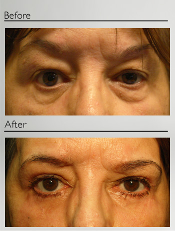 Upper and lower blepharoplasty + ptosis left upper eyelid