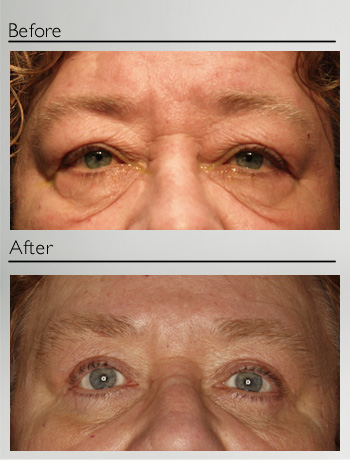 Blepharoplasty upper and lower-16