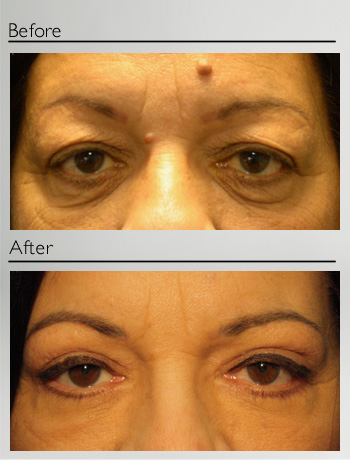 Blepharoplasty upper and lower-17