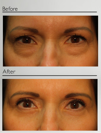 Blepharoplasty upper and lower-18