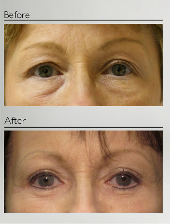 Blepharoplasty upper and lower-2