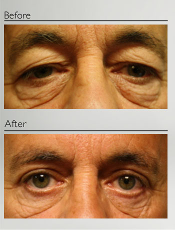 Blepharoplasty upper and lower-3