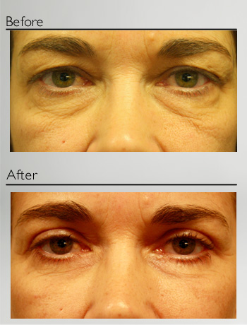 Blepharoplasty upper and lower-4