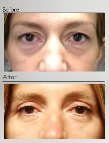 Blepharoplasty upper and lower-5