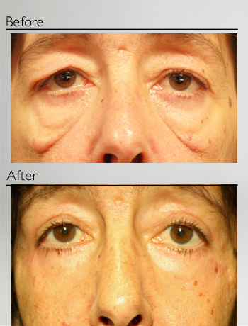 Upper an lower blepharoplasty + festoons