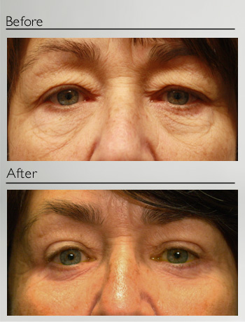 Blepharoplasty upper and lower-7