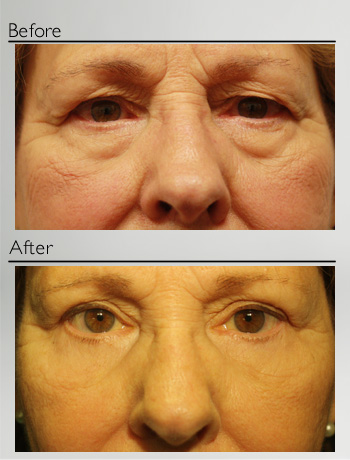 Blepharoplasty upper and lower-9