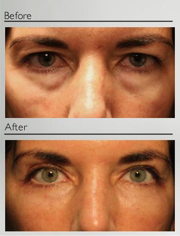 Fat injection lower eyelids and upper eyelids blepharoplasty