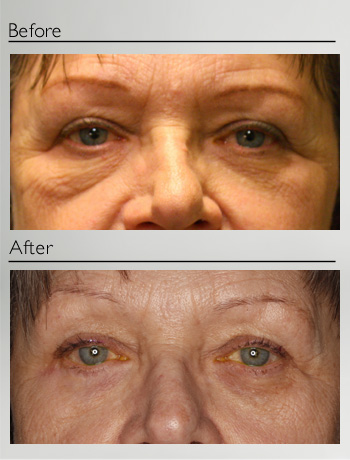 Lower right eyelid blepharoplasty
