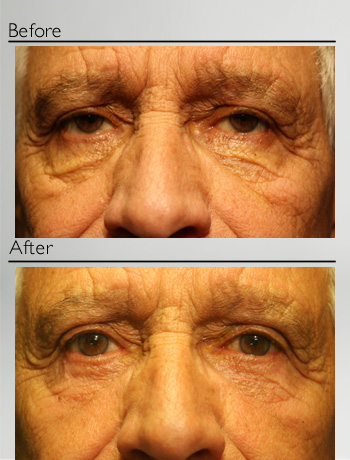 Lower Eyelid Blepharoplasty + ptosis