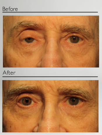 Ptosis and right eye Prosthesis