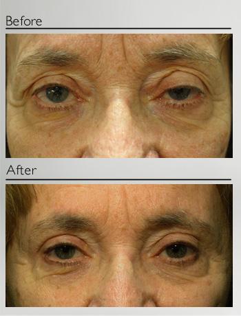 Upper eyelid blepharoplasty and ptosis repair