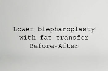 lower bleph with fat transfer