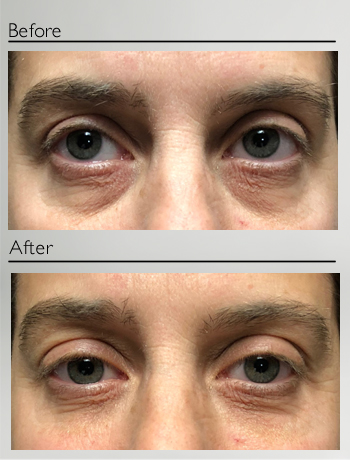 Lower eyelids treatment