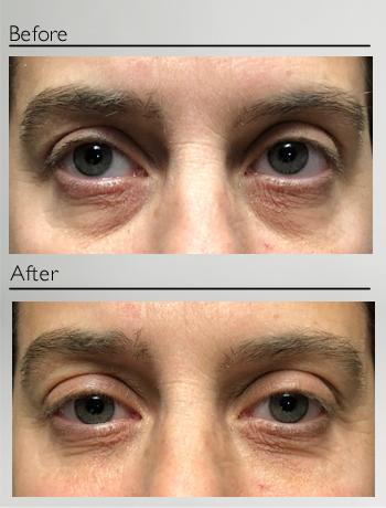 Lower eyelids treatment
