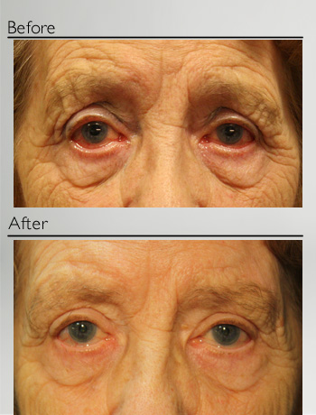 Fillers for eyebrow wrinkles