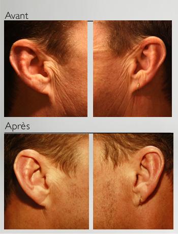 Traitement des oreilles
