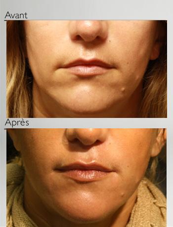 Traitement du bas du visage et des lèvres