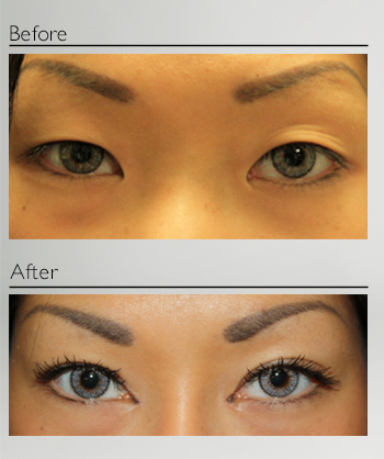 eyelid_surgery_aisian_blepharoplasty_before_after_Dr_Patrick_Boulos_clinique_o_montreal_01