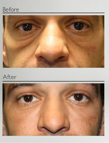 eyelid_surgery_fillers_before_after_Dr_Patrick_Boulos_clinique_o_montreal_01