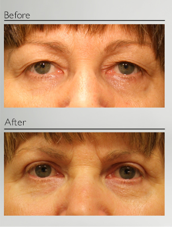 eyelid_surgery_upper_eyelid_blepharoplasty_before_after_Dr_Patrick_Boulos_clinique_o_montreal_12