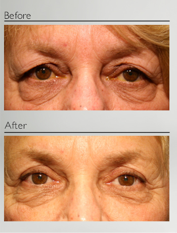 eyelid_surgery_upper_eyelid_blepharoplasty_before_after_Dr_Patrick_Boulos_clinique_o_montreal_13