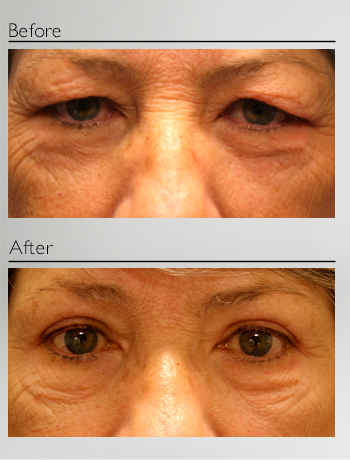 eyelid_surgery_upper_eyelid_blepharoplasty_before_after_Dr_Patrick_Boulos_clinique_o_montreal_14